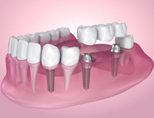Implants Vs. Bridges: Which is Better?