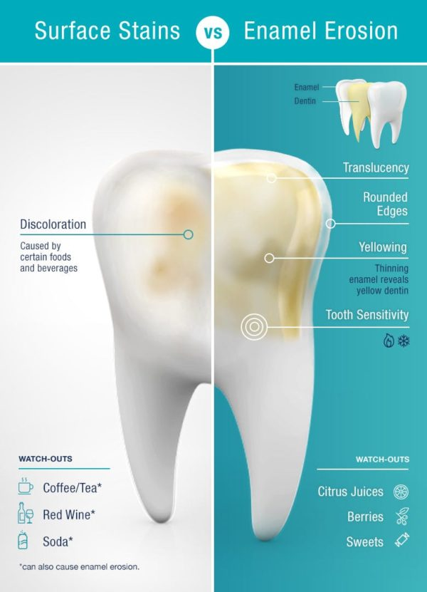 Tooth stains vs enamel erosion