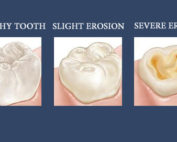 Tooth Erosion Dentist in Pineville NC