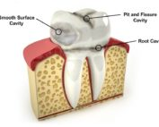 Dentist in Pineville NC - Prevent Cavities