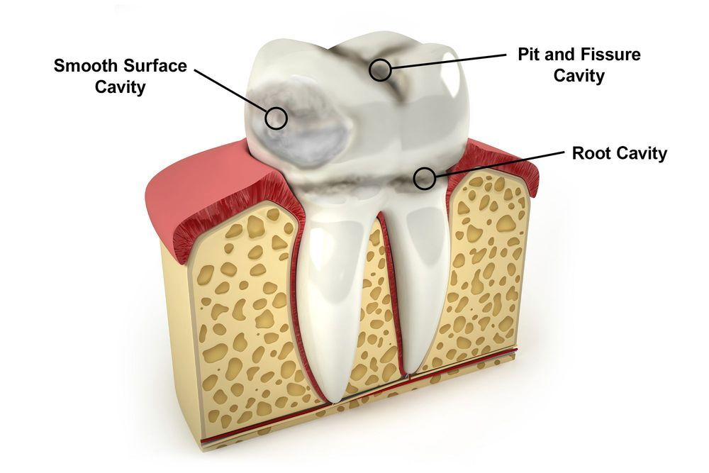 9 Ways To Prevent Cavities | Dentist in Pineville, NC