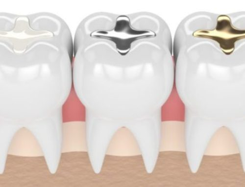 Tooth Filling Procedure Explained