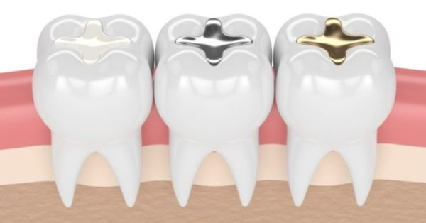 Tooth filling dentist in pineville