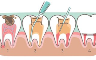 Root Canal Therapy Dentist in Pineville, NC
