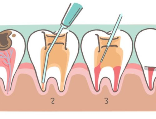 Root Canal Therapy Explained